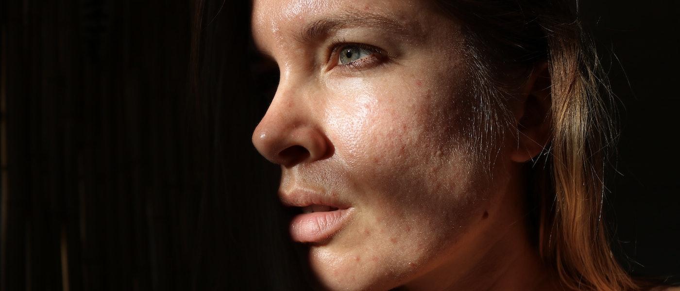 Joanna Kenny's Top 10 SPFs for Acne-Prone Skin