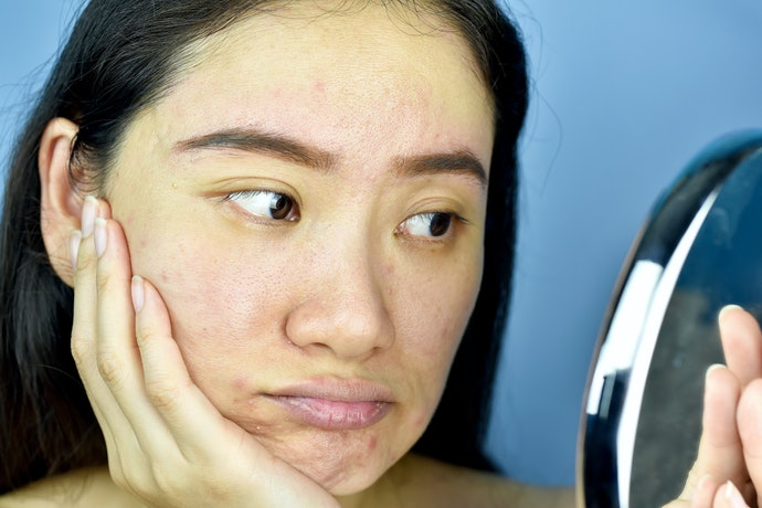 Those With Sensitive Skin Need to Read Ingredient Lists