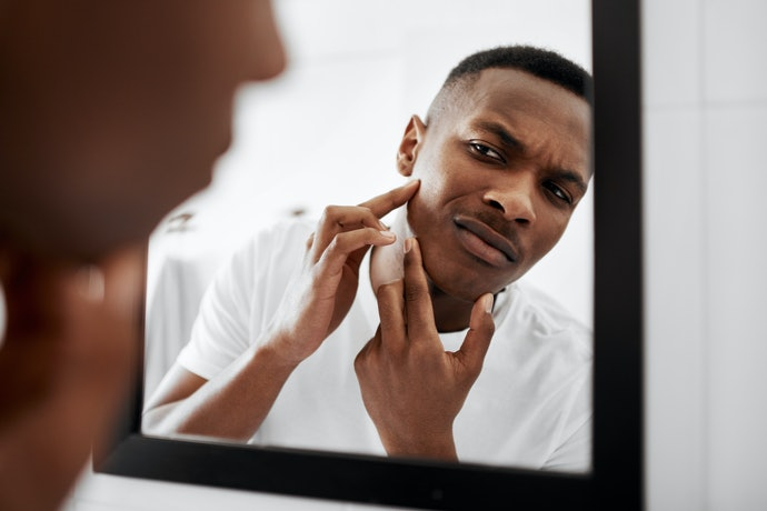 Emollients Might Lead to Breakouts