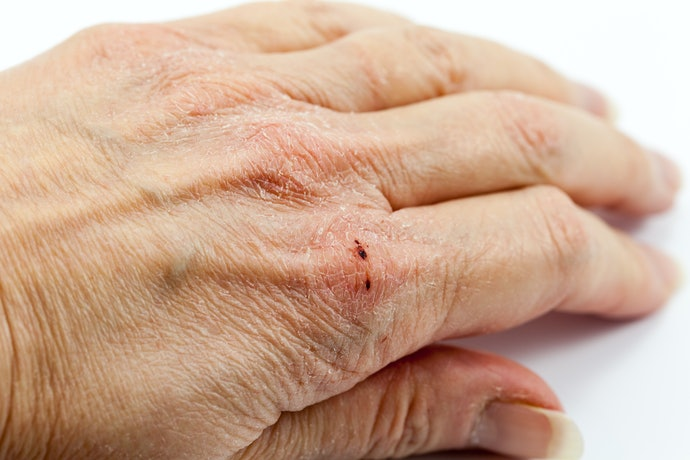 Avoid Potential Irritants That Can Trigger Allergic Reactions