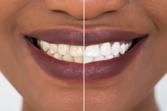 Tips to Use Whitening Strips