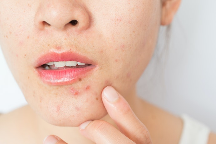 Pick a Moisturizer That Matches Your Skin Type and Concerns