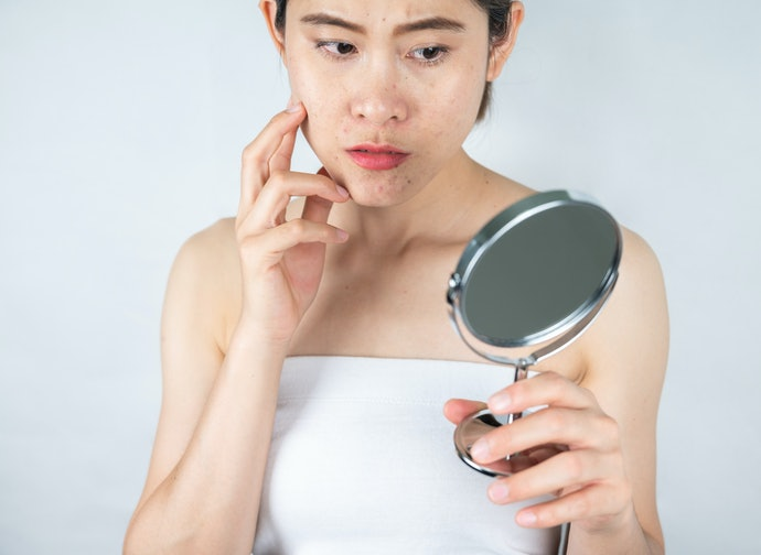 Try Anti-Inflammatory Ingredients for Combination or Acne-Prone Skin