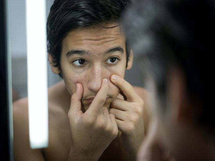 Salicylic Acid, AHAs, and Topical Retinoids are Ideal for Non-Inflammatory Acne