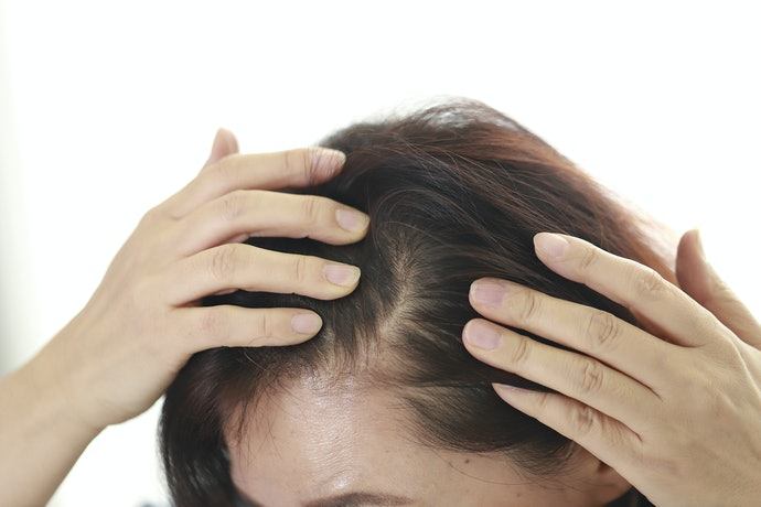 Consider Hair Regrowth Products for Thin Hair