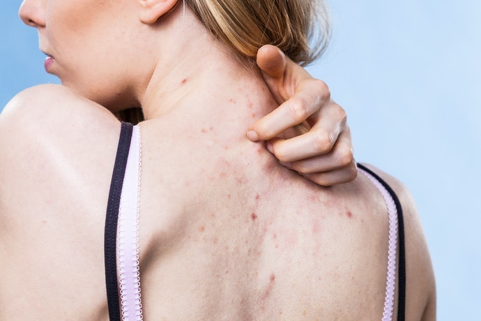 Know Ingredients That Might Irritate Your Skin