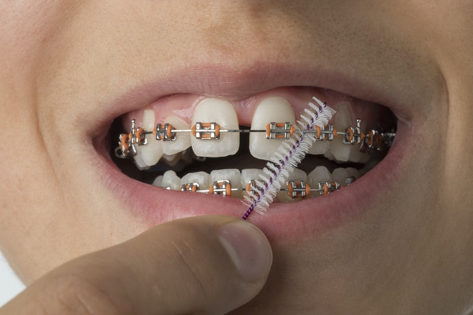 Interdental Brushes are Gentle