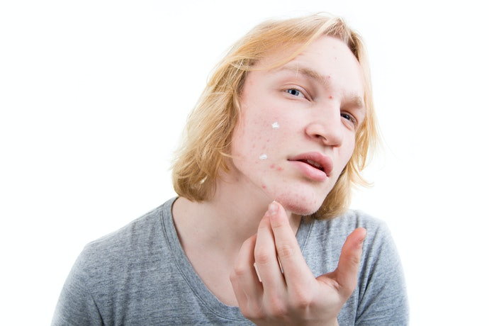 Inflammatory Acne Can Benefit from Benzoyl Peroxide and Tea Tree Oil
