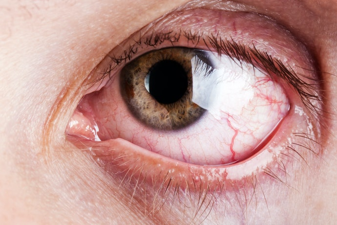 Anti-Allergy Eye Drops Can Relieve Itching and Redness