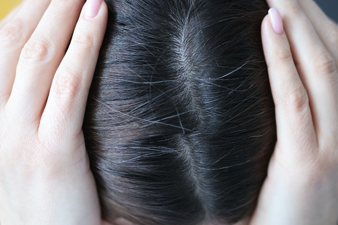 Avoid Irritants Such as Artificial Colors to Keep Your Scalp Healthy