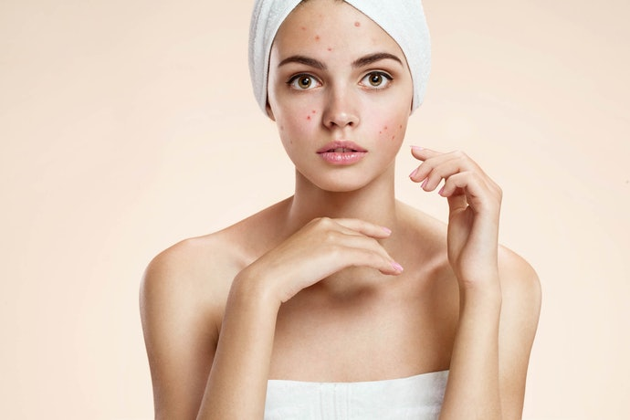 The Plague of Oily Skin: Look for Ingredients like Salicylic Acid, Meant to Fight Acne and Enlarged Pores